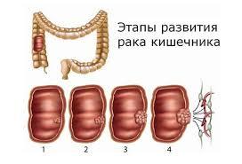 Рак толстого кишечника: стадии фото