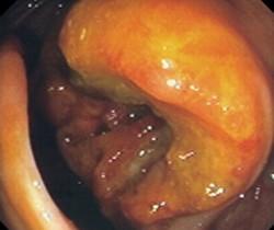 Рак толстого кишечника: стадии