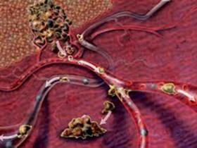 Рак крови: степени