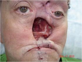 Рак носа: удаление