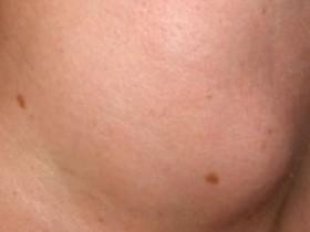 Рак щитовидной железы: факторы