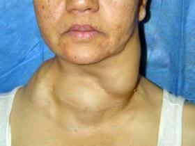 Рак щитовидной железы: фото