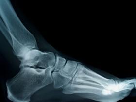 Рак костей: причины и симптомы