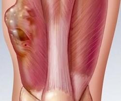 Саркома кости: фото 2