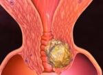 Рак шейки матки: фото