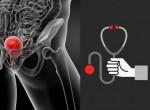 Рак мочевого пузыря — фото опухолей и поражений