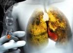 Рак легких: фото