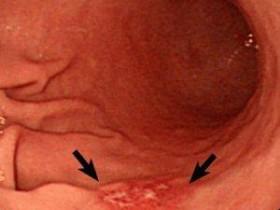 Рак желудка 1 стадия