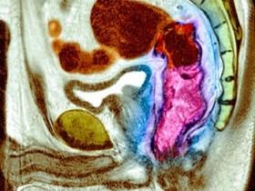 Рак прямой кишки: опухоль