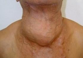 Рак щитовидной железы: симптомы фото