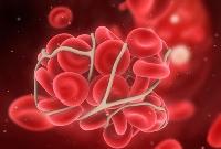 Рак крови: первые признаки