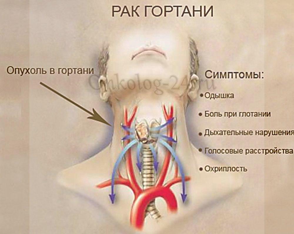 Foto raka gorla i gortani