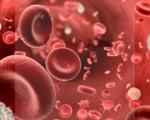 Лейкоз (лейкемия) у детей