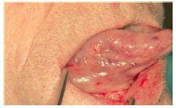 Плоскоклеточный рак языка: удаление