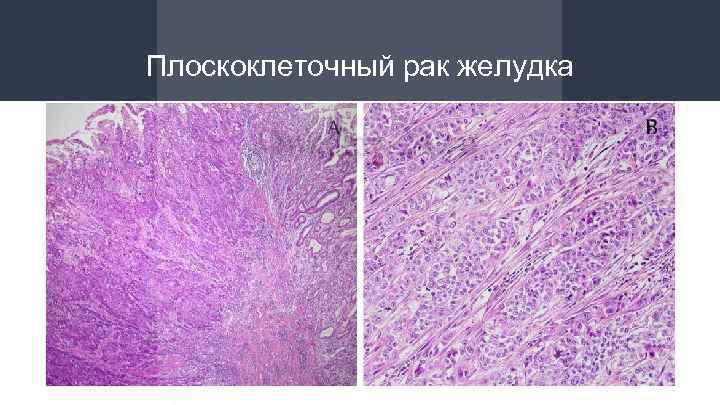Ploskokletochnyy rak zheludka