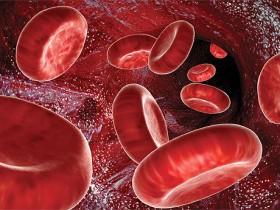 Рак крови: поздние симптомы