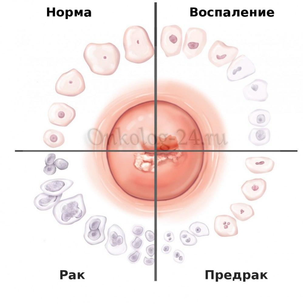 Predrak ili rak sheyki matki