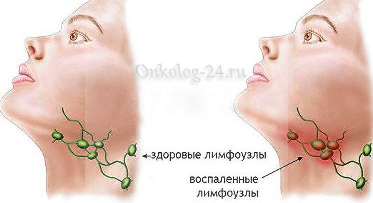 Rak limfouzlov - foto