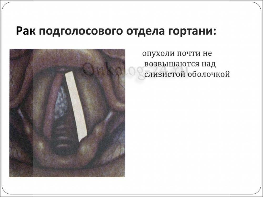 Rak podgolovogo otdela gortani