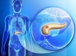 Информативное видео: Что такое рак поджелудочной железы, каковы причины его возникновения, симптомы, диагностика и лечение