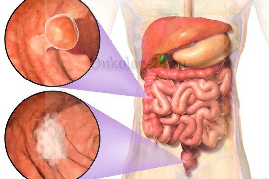 Rak sigmovidnoy kishki na 1 stadii