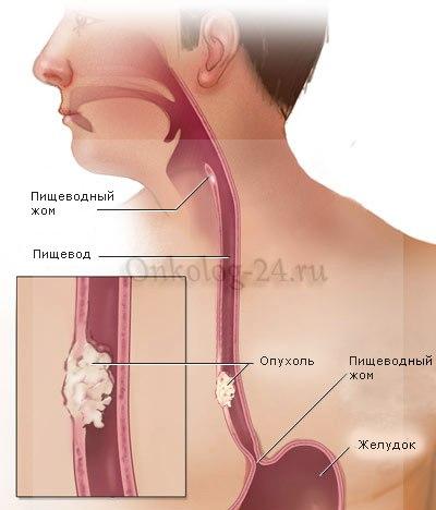 Simptomy raka pishchevoda