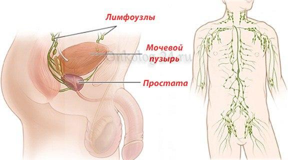 Vospaleniye pakhovykh limfouzlov pri prostatite