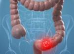 Рак сигмовидной кишки: фото