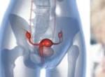 Рак яичников: фото