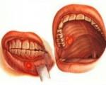 Рак полости рта: рак десны, щеки, нёба