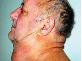 Рак щитовидной железы: причины