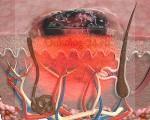 Как выглядит меланома кожи, фото, какие симптомы имеет, лечение и прогноз