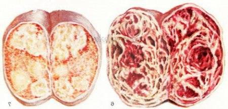 Опухоль - рак яичек
