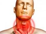 Рак горла (гортани): фото