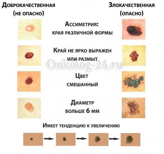 simptomy melanomy