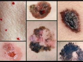 Виды и формы меланомы