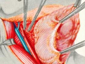 Операция при злокачественной опухоли ЩЖ
