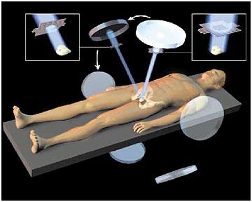 Лечение рака яичек с применением лучевой терапии