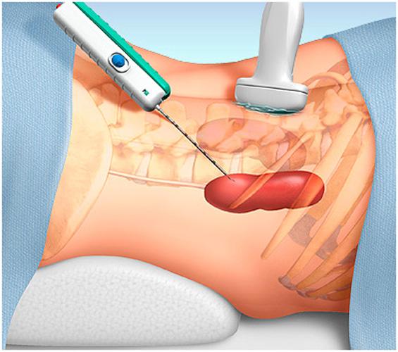 Биопсия - метод диагностики рака