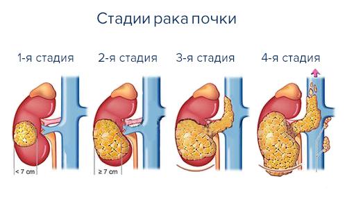 Молочница у ребенка до года как лечить