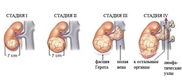 Степени рака почек у детей