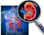 Рак почек: симптомы и признаки, стадии, диагностика и лечение