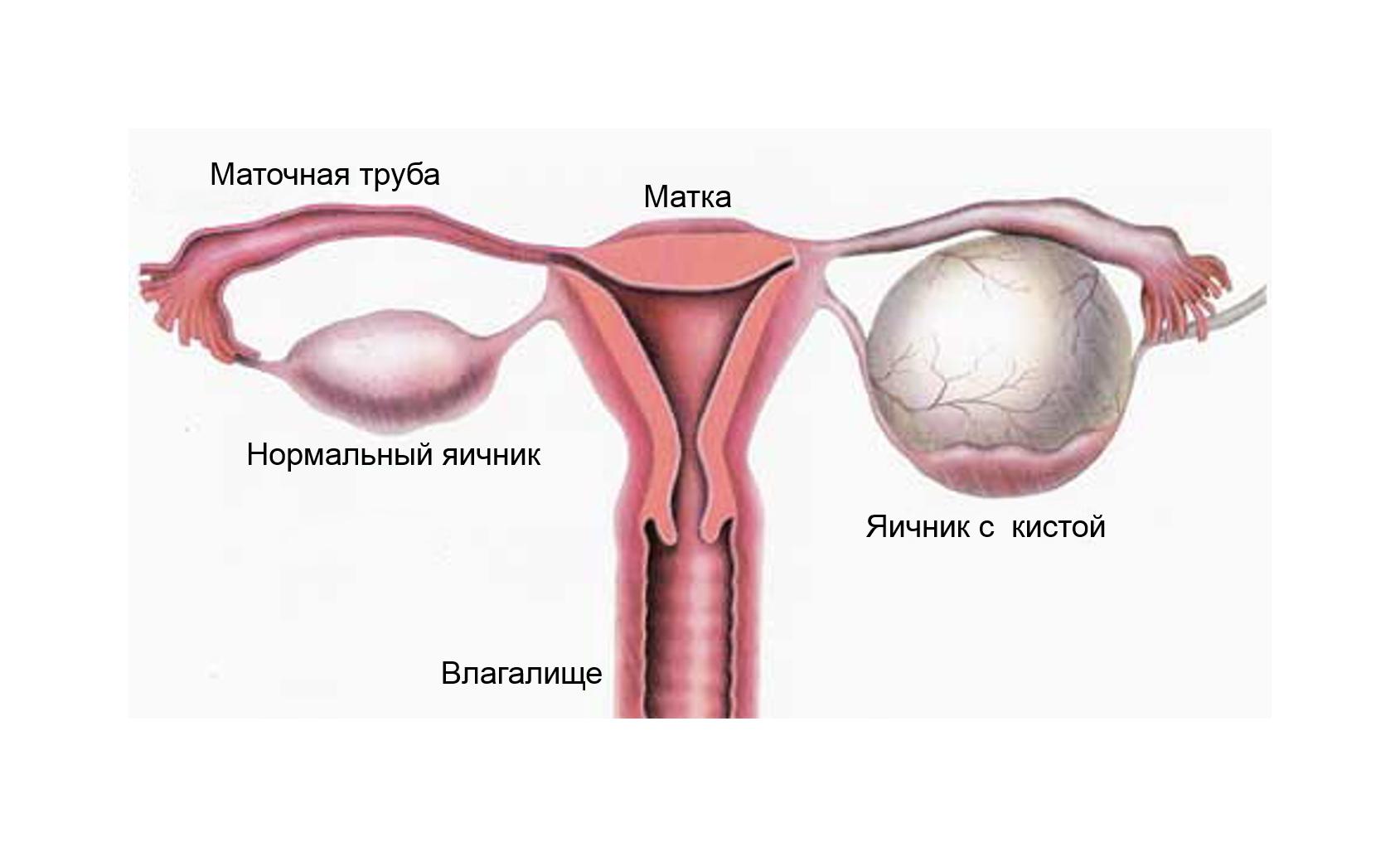 Тератома левого яичника