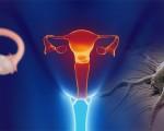 Рак яичников