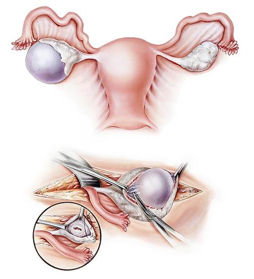 Тератома правого яичника