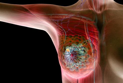 Рак груди: лечение
