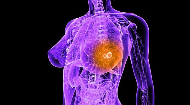 Что такое лучевая терапия при раке груди?