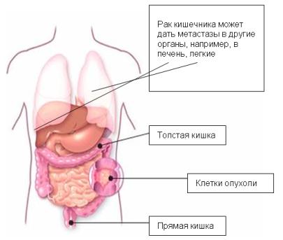Рак кишечника с метастазами