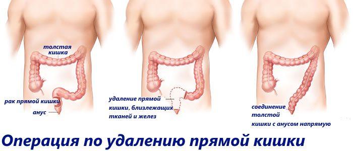 Осложнения после удаления опухоли прямой кишки