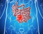 Рак тонкого кишечника: симптомы, диагностика и лечение